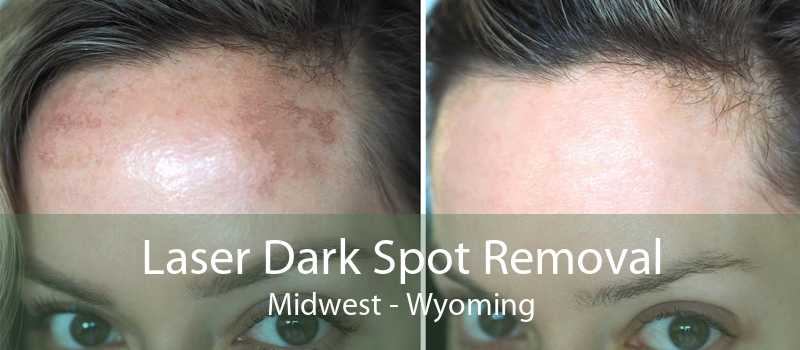 Laser Dark Spot Removal Midwest - Wyoming