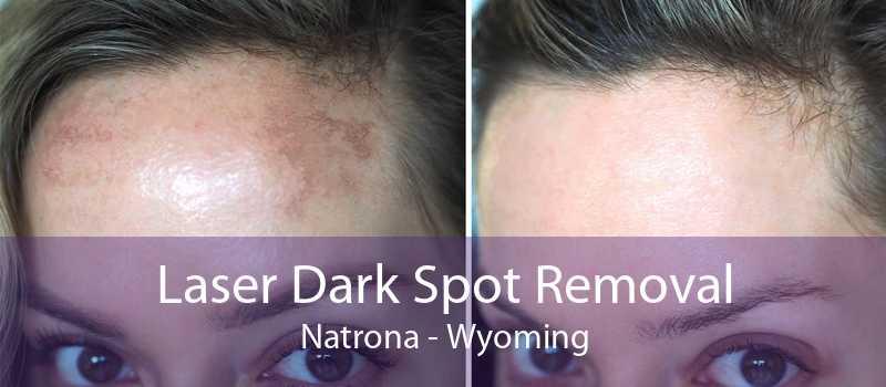 Laser Dark Spot Removal Natrona - Wyoming