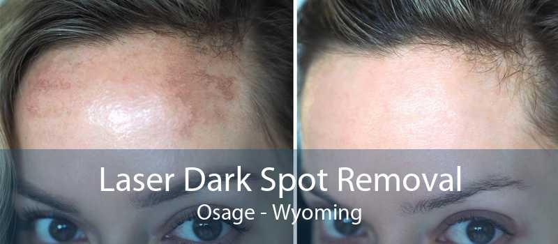 Laser Dark Spot Removal Osage - Wyoming