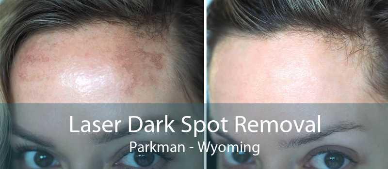 Laser Dark Spot Removal Parkman - Wyoming