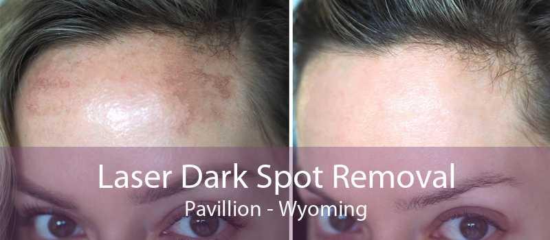Laser Dark Spot Removal Pavillion - Wyoming