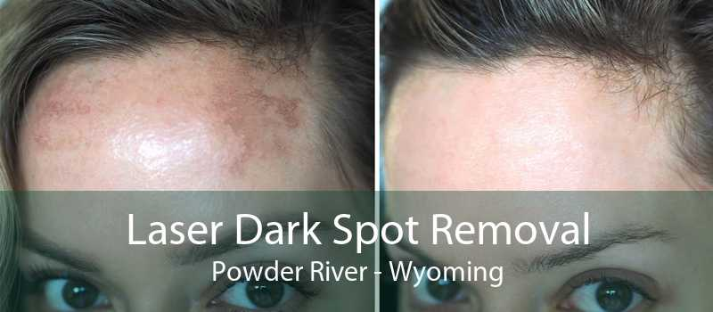 Laser Dark Spot Removal Powder River - Wyoming