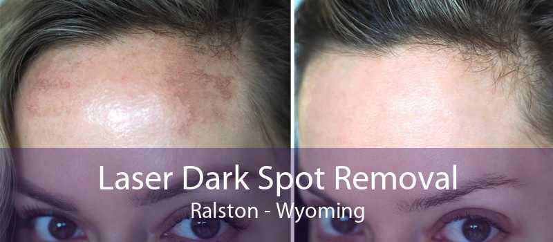 Laser Dark Spot Removal Ralston - Wyoming