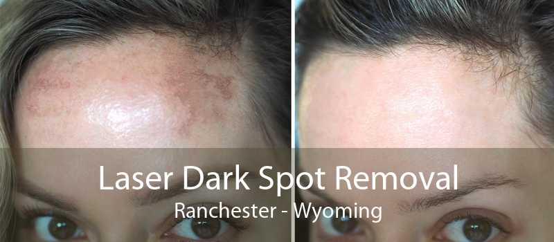 Laser Dark Spot Removal Ranchester - Wyoming