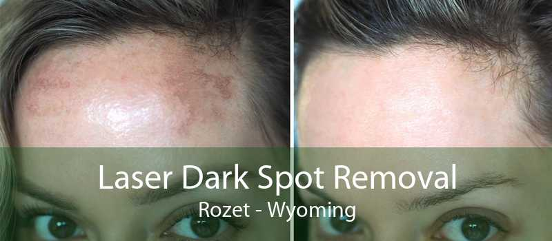 Laser Dark Spot Removal Rozet - Wyoming