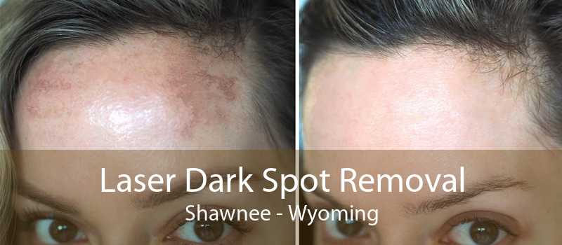 Laser Dark Spot Removal Shawnee - Wyoming