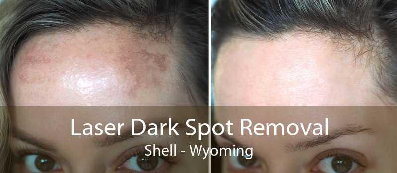Laser Dark Spot Removal Shell - Wyoming