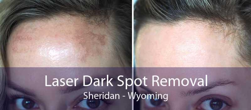 Laser Dark Spot Removal Sheridan - Wyoming