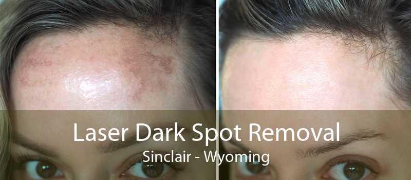 Laser Dark Spot Removal Sinclair - Wyoming