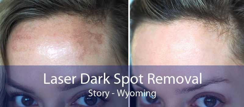 Laser Dark Spot Removal Story - Wyoming