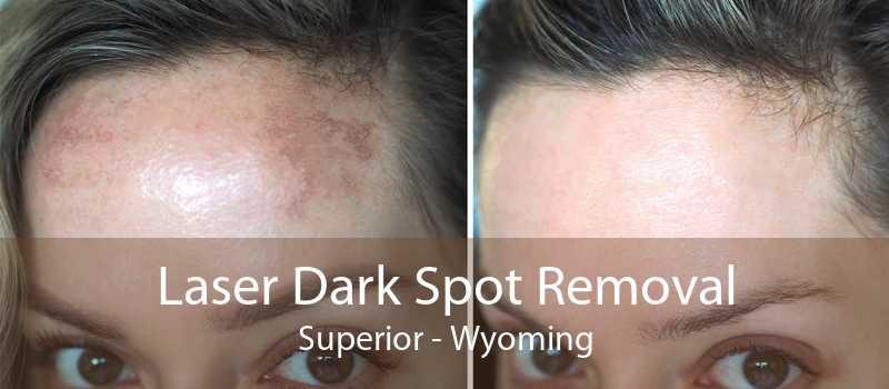 Laser Dark Spot Removal Superior - Wyoming