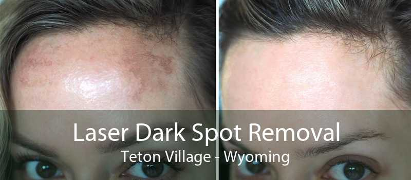 Laser Dark Spot Removal Teton Village - Wyoming