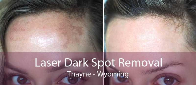 Laser Dark Spot Removal Thayne - Wyoming