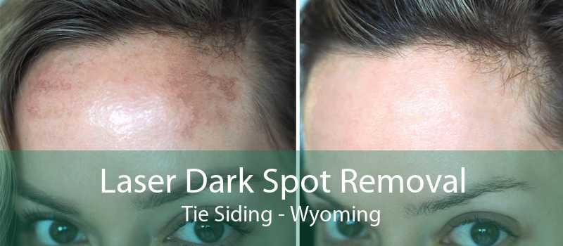 Laser Dark Spot Removal Tie Siding - Wyoming
