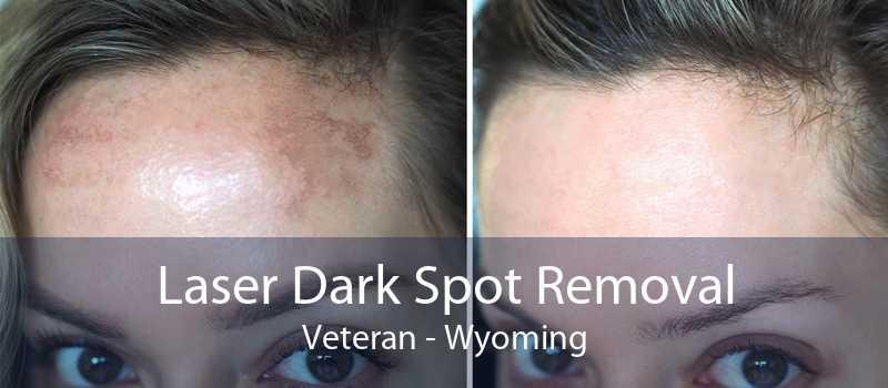 Laser Dark Spot Removal Veteran - Wyoming