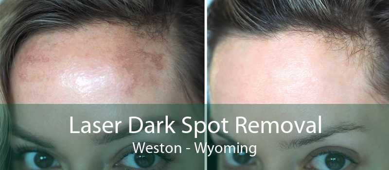 Laser Dark Spot Removal Weston - Wyoming