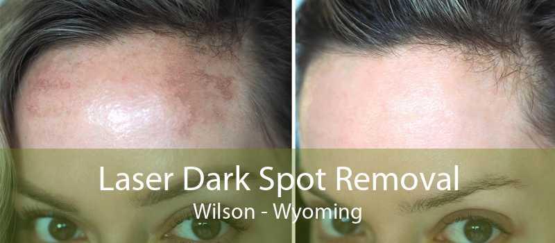 Laser Dark Spot Removal Wilson - Wyoming