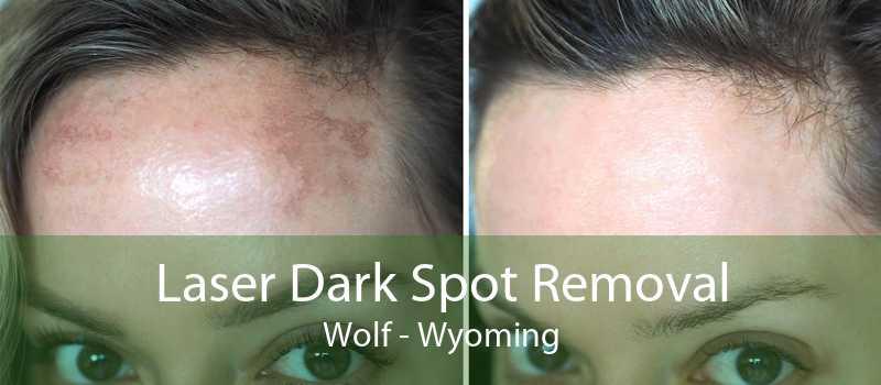 Laser Dark Spot Removal Wolf - Wyoming