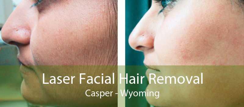 Laser Facial Hair Removal Casper - Wyoming