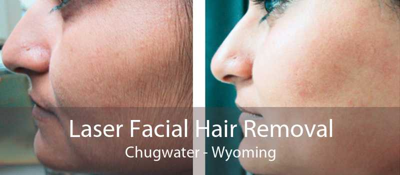 Laser Facial Hair Removal Chugwater - Wyoming