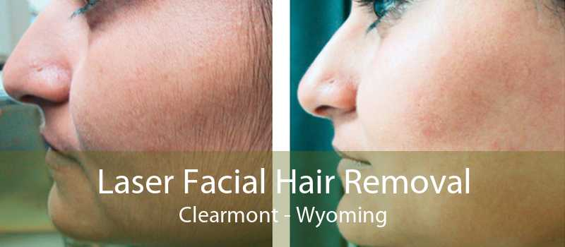 Laser Facial Hair Removal Clearmont - Wyoming