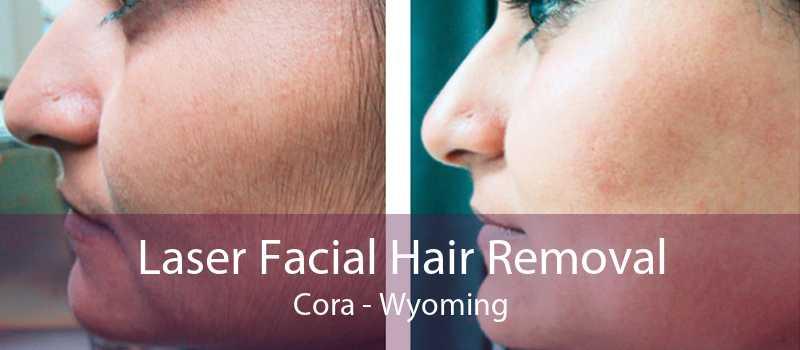 Laser Facial Hair Removal Cora - Wyoming