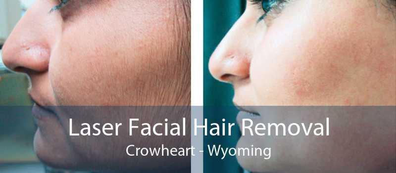 Laser Facial Hair Removal Crowheart - Wyoming
