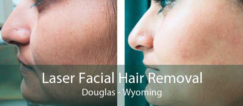 Laser Facial Hair Removal Douglas - Wyoming