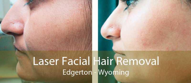Laser Facial Hair Removal Edgerton - Wyoming