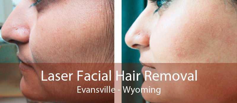 Laser Facial Hair Removal Evansville - Wyoming