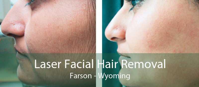 Laser Facial Hair Removal Farson - Wyoming