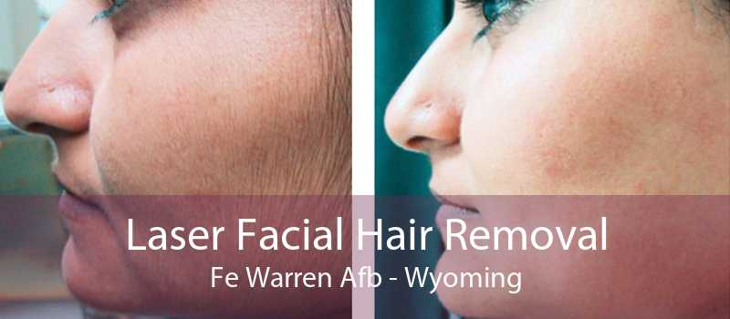 Laser Facial Hair Removal Fe Warren Afb - Wyoming