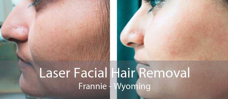 Laser Facial Hair Removal Frannie - Wyoming