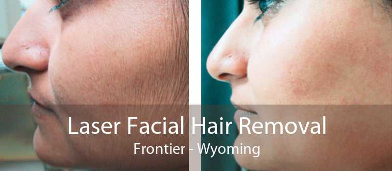 Laser Facial Hair Removal Frontier - Wyoming
