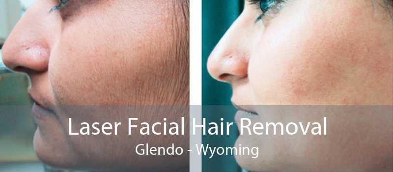 Laser Facial Hair Removal Glendo - Wyoming