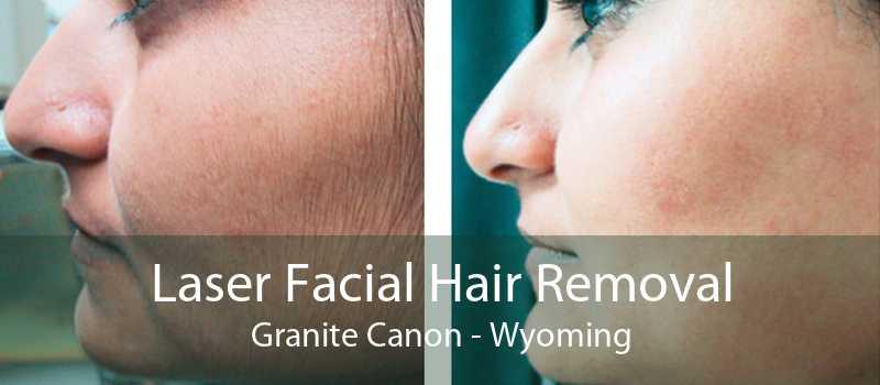 Laser Facial Hair Removal Granite Canon - Wyoming