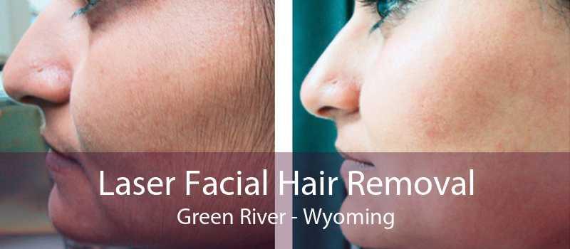 Laser Facial Hair Removal Green River - Wyoming