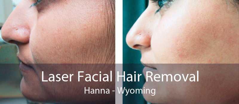 Laser Facial Hair Removal Hanna - Wyoming