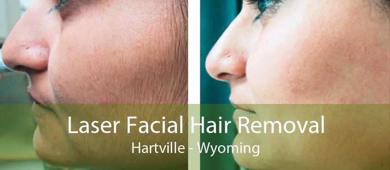 Laser Facial Hair Removal Hartville - Wyoming