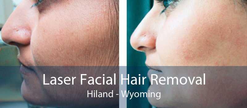 Laser Facial Hair Removal Hiland - Wyoming
