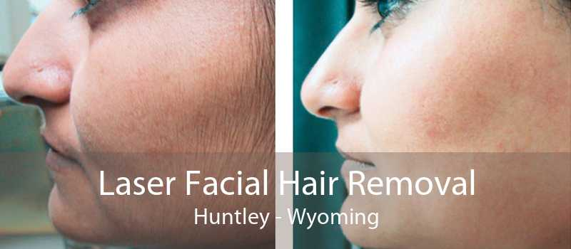 Laser Facial Hair Removal Huntley - Wyoming