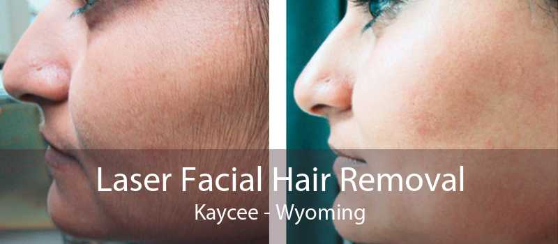 Laser Facial Hair Removal Kaycee - Wyoming
