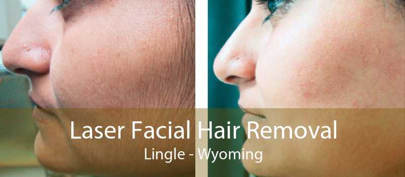 Laser Facial Hair Removal Lingle - Wyoming