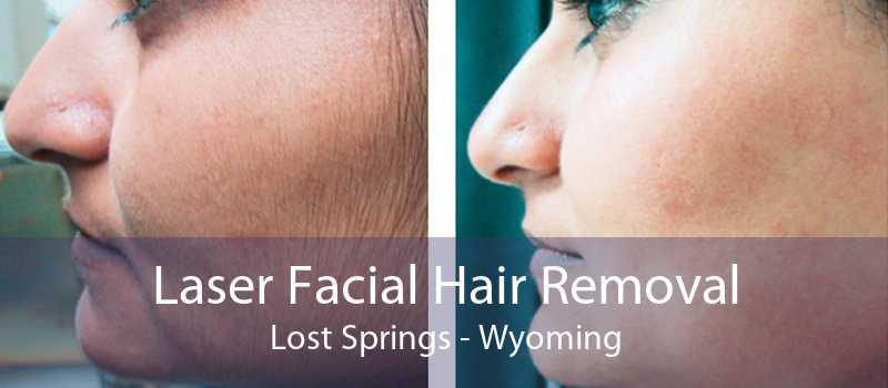 Laser Facial Hair Removal Lost Springs - Wyoming