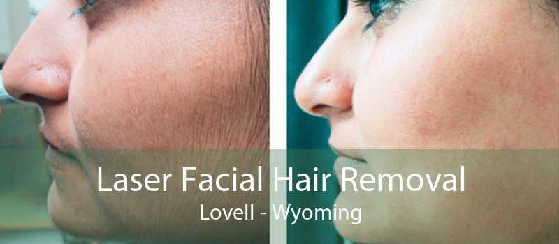 Laser Facial Hair Removal Lovell - Wyoming