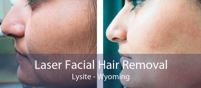 Laser Facial Hair Removal Lysite - Wyoming