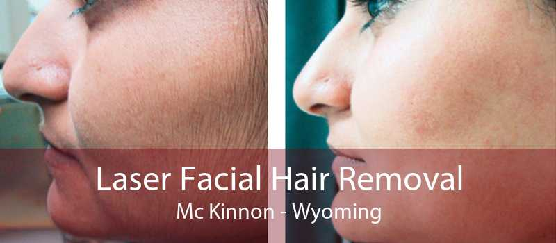 Laser Facial Hair Removal Mc Kinnon - Wyoming