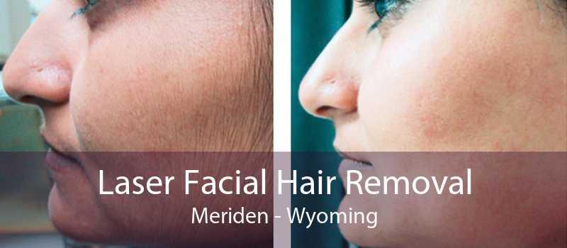 Laser Facial Hair Removal Meriden - Wyoming
