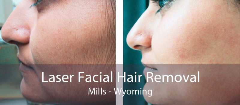 Laser Facial Hair Removal Mills - Wyoming