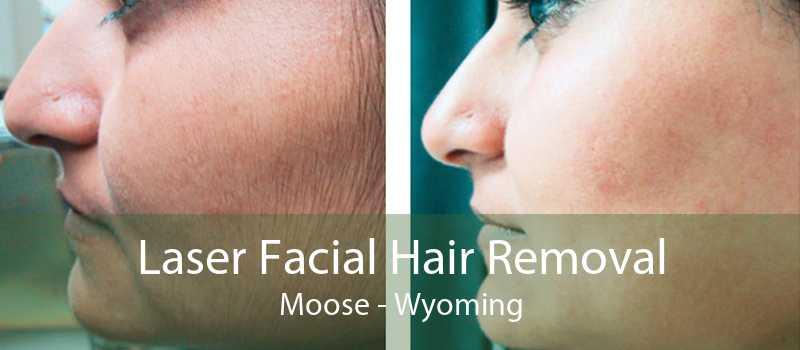 Laser Facial Hair Removal Moose - Wyoming